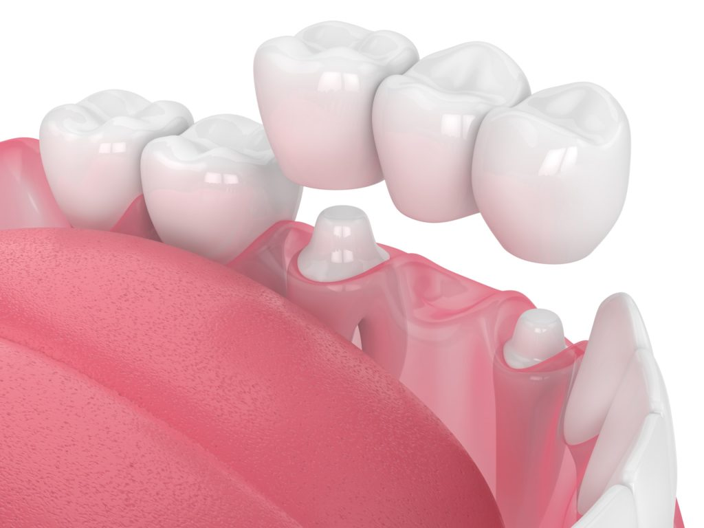 Illustration of a bottom row of teeth with a dental bridge being attached