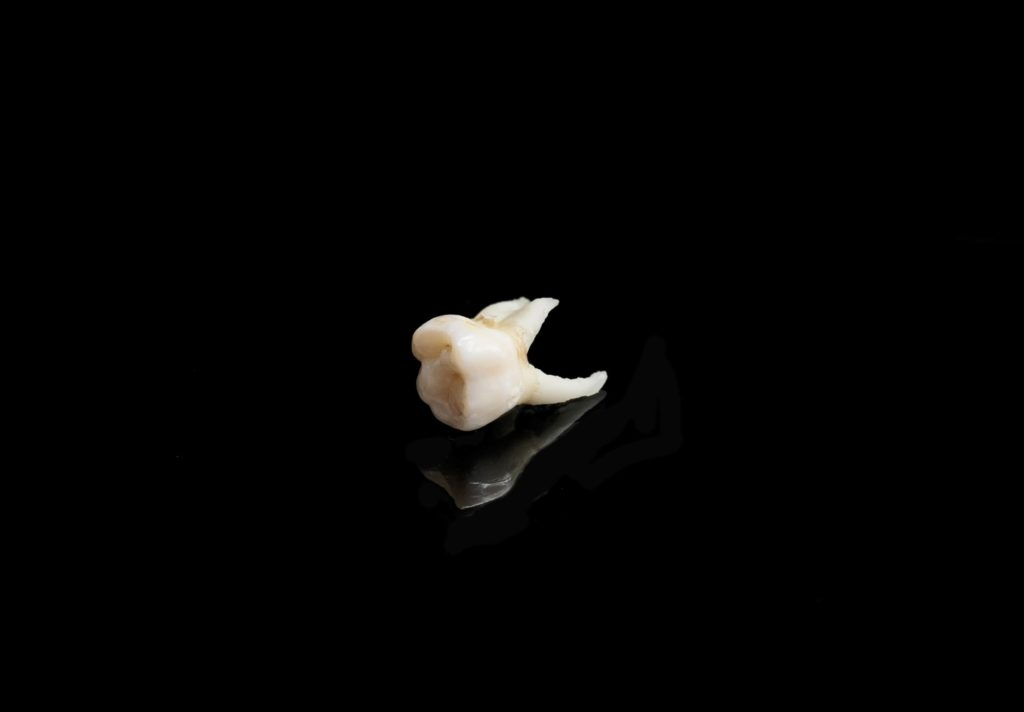 A white tooth laying on a black background