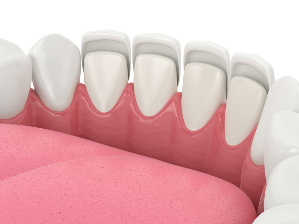 Illustration of a bottom row of teeth with veneers being applied