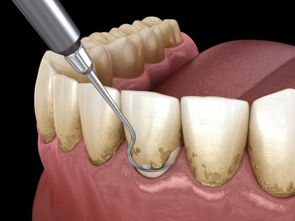 Illustration of a dental pick scraping plaque off a bottom row of teeth