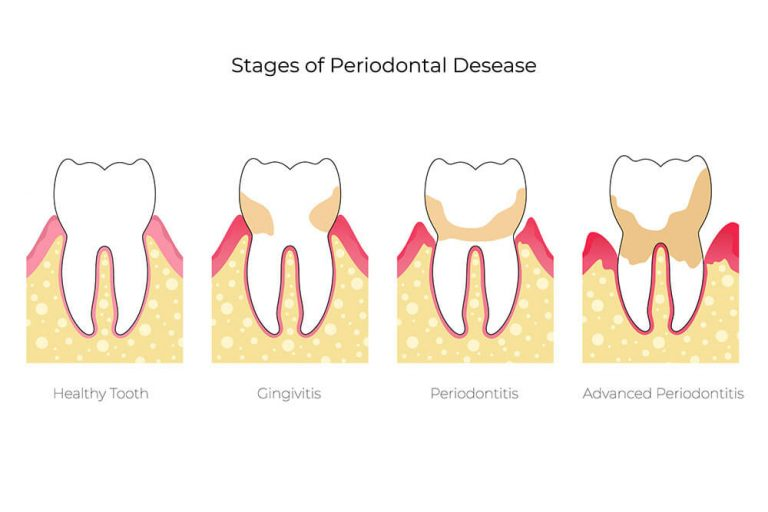 Illustration showing the different stages of periodontal disease: normal, gingivitis, periodontitis, and advanced periodontitis
